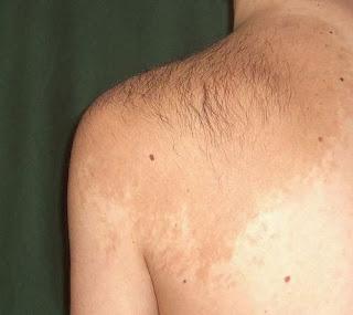 Becker melanosis - Becker's nevus