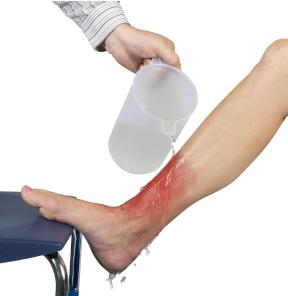 treating major burn injuries