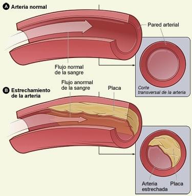 Sindromes clincos de la aterosclerosis