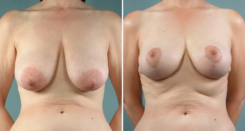 South Bend Breast Lift Info Mastopexy Surgery & Recovery