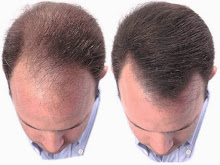 Quick Solution To Your Hair Loss