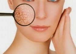 Simple Tips to Overcome Scaly Skin