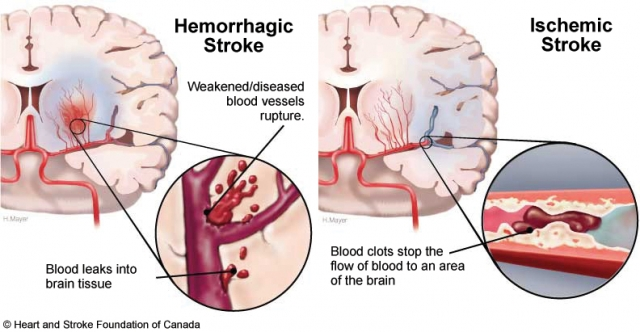 http://obatherbal18.blogspot.com/2013/09/obat-herbal-stroke.html