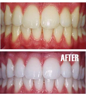Vievie Cosmetik Grosir Cleanness Tooth Pemutih Gigi Herbal