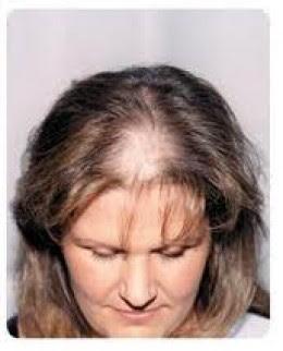 hair loss help