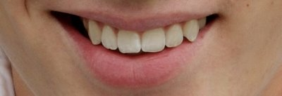 whiten-teeth-photoshop-tutorials