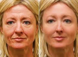 Le masque cosmétique pour la personne dans le sauna