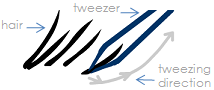 Tweezing direction.