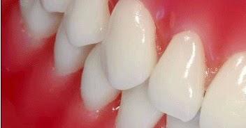 Question de la semaine : Les soins dentaires pendant la