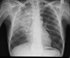 Pneumonia: causas, sintomas e tratamentos