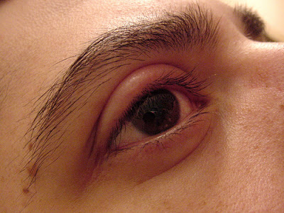 Natural remedies for swollen eyelids