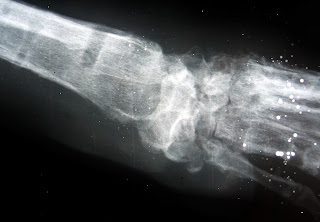 artodesis completa, medicina bioregenerativa