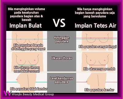 karakteristik operasi plastik payudara implan tetes air wonjin-2