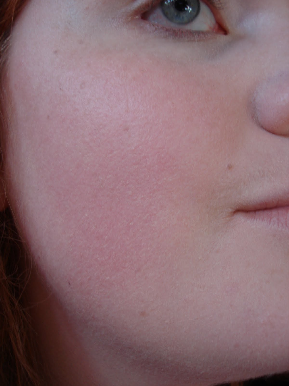 How to Get Rid of Dark Spots on Your Face (with Pictures) Brown patch on face pictures