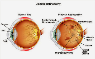 Diabetic Retinopathy: Rick, Symptoms And Treatment