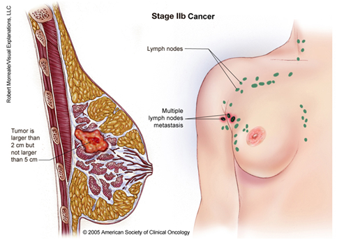 menstral bleeding breast cancer