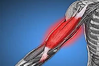 A dor muscular após o exercício