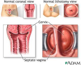 Bentuk vagina Syafra'