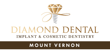 Diamond Dental Mount Vernon