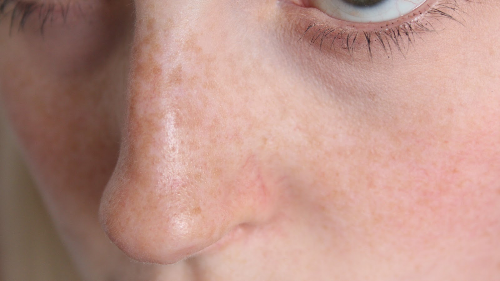 large pores on nose - photo #19