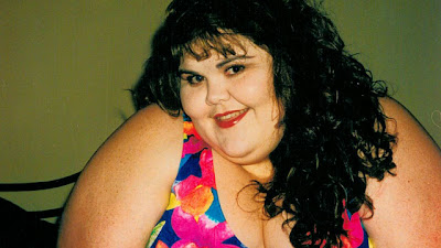Reasons For The Growing Popularity Of Gastric Bypass Surgery