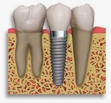 http://www.dentistinchennai.com/implant-procedures.php
