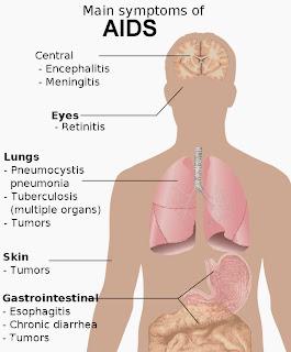 AIDS nedir, AIDS belirtileri, AIDS hastalığı