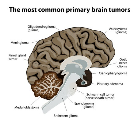 Brain tumor funds adult