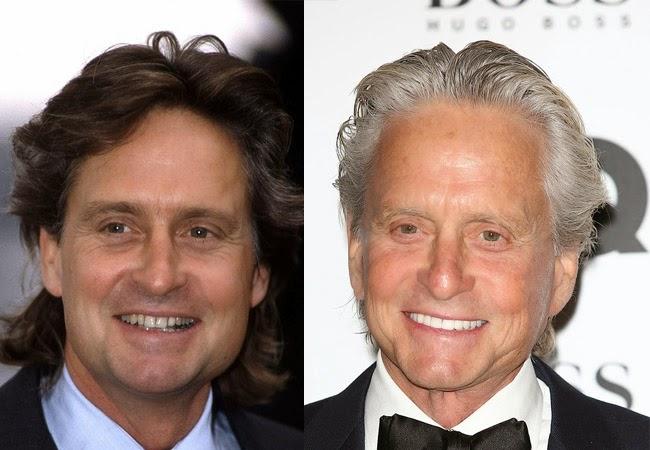 famosos con nueva dentadura michael douglas