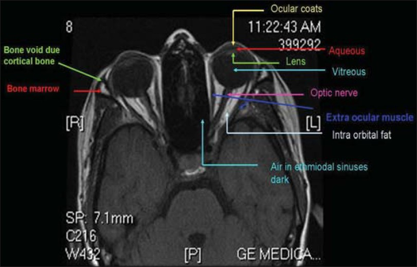 Orbit MRI Anatomy | Radiology Anatomy Images