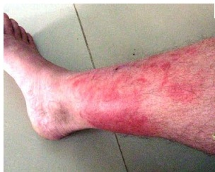 How To Kill Staph On Skin Naturally