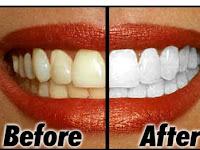 Cara Paling Mudah Menjaga Kesehatan Gigi Agar Tampak Putih Bersinar Cepat dan Permanen