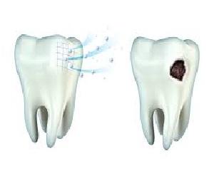 Penyebab gigi sensitif haruslah Anda ketahui supaya dapat mencegah gigi ngilu yang membuat Penyebab Gigi Sensitif dan Pengobatannya Wajib Anda Tahu