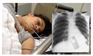 Photo: 19-Year Old Cheating Brazilian Girl Swallows Mobile Phone