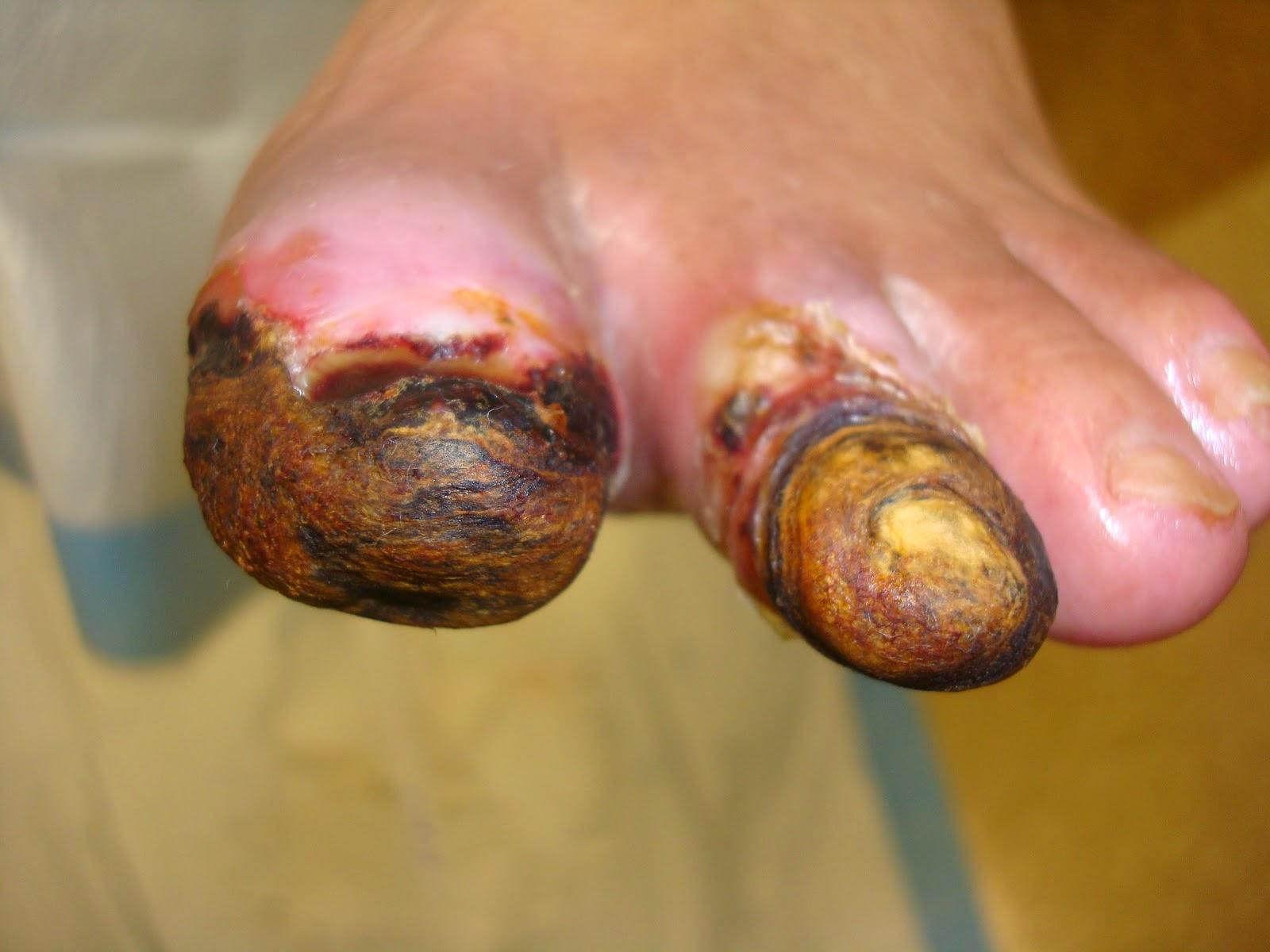 potong kaki akibat kencing manis