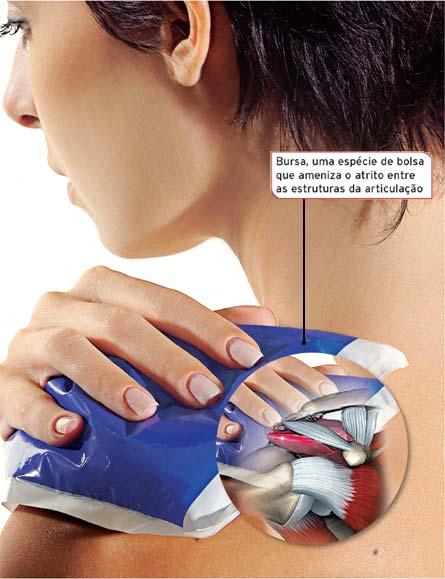 Bolsa De Gelo No Ombro : Osteopatia em curitiba dor no ombro pra fazer exerc?cio