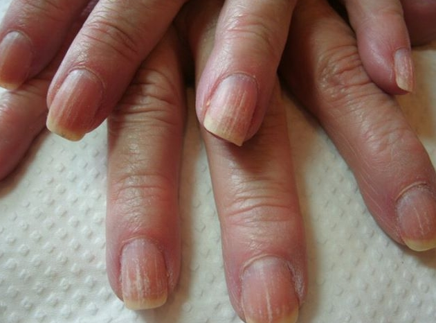 What causes black lines in fingernails? | Reference.com