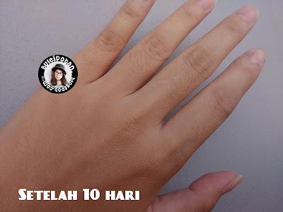 kulit tangan