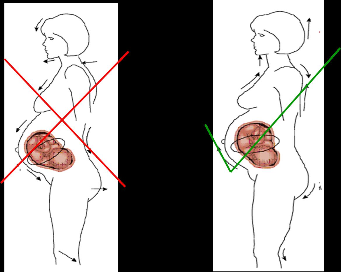 Fitnesspedia: Exercise Benefits in Pregnancy