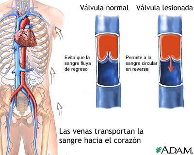 El aparato de la tromboflebitis