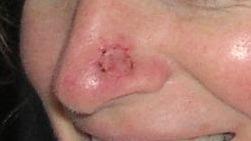 pre cancer skin spots