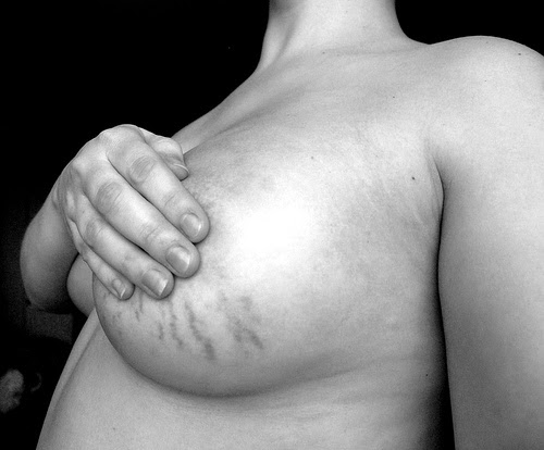 Breast stretch marks