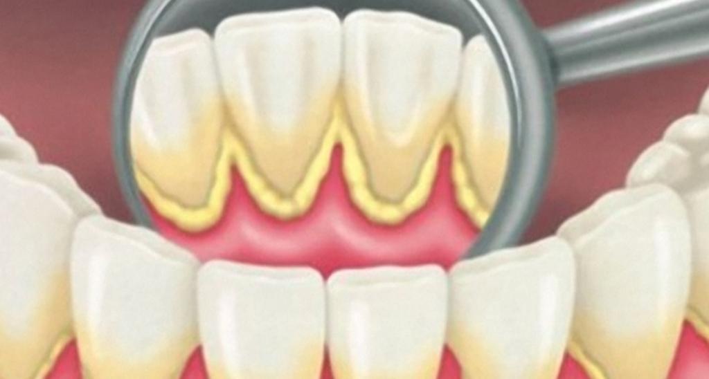 Cara Menghilangkan Karang Gigi Secara Alami Planet Kabar