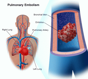 pulmonary artery, pulmonary fibrosis, pulmonary edema, signs pulmonary embolism, symptoms pulmonary embolism, pulmonary embolism definition, pulmonary embolism causes, pulmonary embolism cancer, pulmonary embolism ecg, pulmonary hypertension, treatment pulmonary embolism, acute pulmonary embolism, pulmonary embolism diagnosis, blood clot