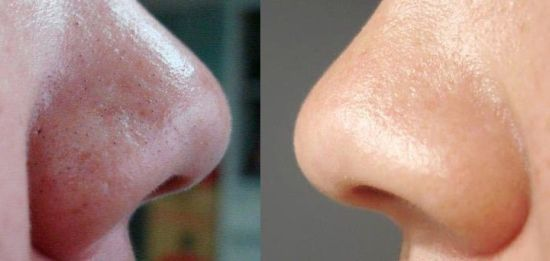 Cara Menghilangkan Komedo Di Hidung, Dagu Dan Wajah