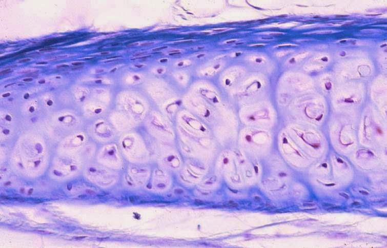 Figura 03. Tejido conectivo cartilaginoso, las manchas moradas pequeñas son los condrocitos y lo morado es la matriz extracelular de colágeno con hialurato de sodio.