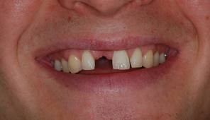 Dental implants Arizona