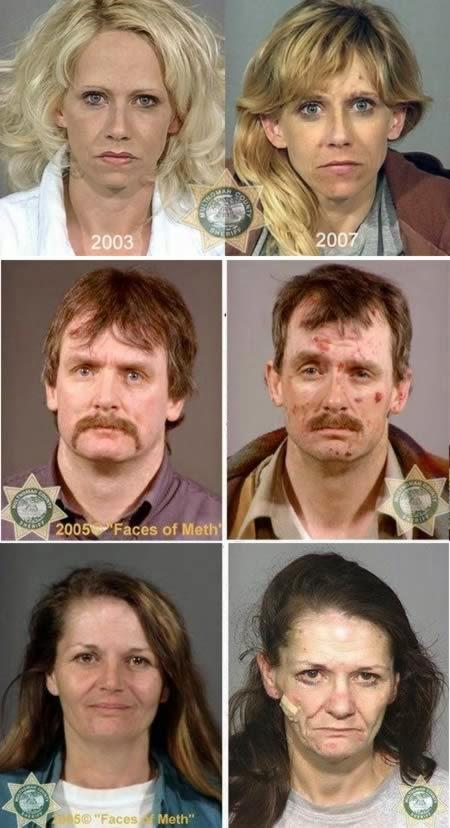 Antes y después de adictos a las drogas