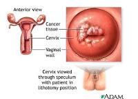 http://1.bp.blogspot.com/-LhpF-WFibJg/TcniM_lkKTI/AAAAAAAAAxk/jMH36h4D4Us/s1600/kanker+serviks+2.jpg