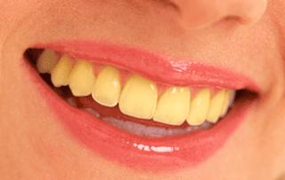 Cara Mengatasi Gigi Kuning Dengan Buah Strawberi